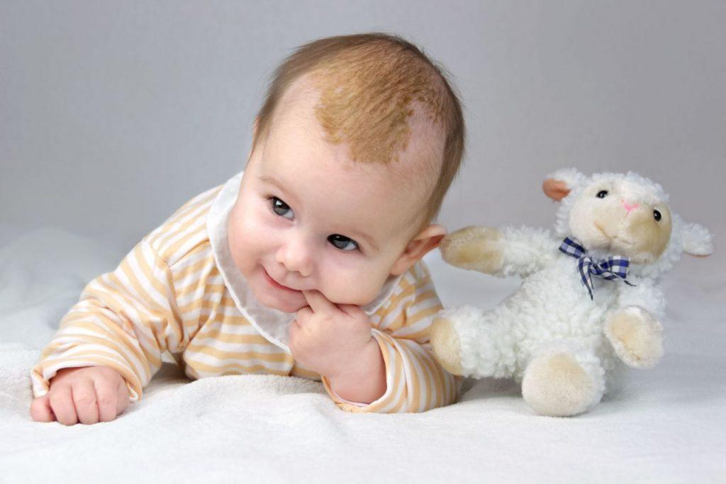 Kopfgneis beim Baby: Das musst Du wissen!