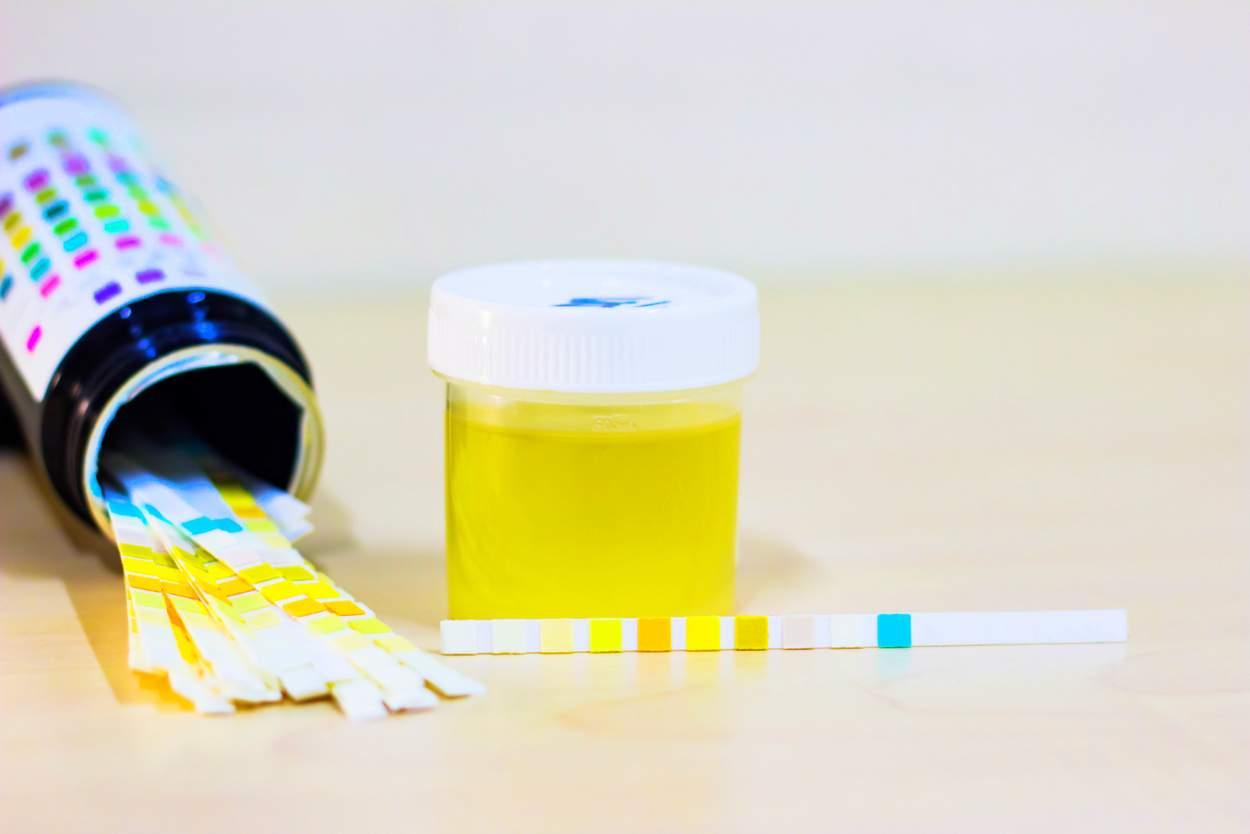 Gelber Urin In Der Schwangerschaft